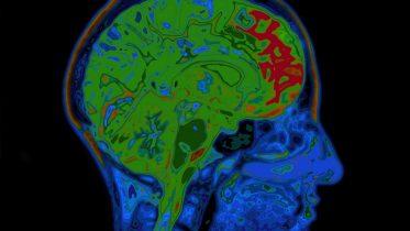 prioriteit van je hersenen